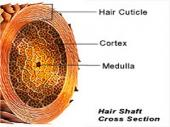 Hair shaft disorders